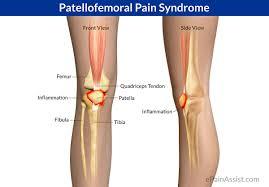 Lesão por Esforço Repetitivo: Síndrome Paletofemoral