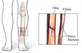Lesão por Esforço: Fratura por Estresse